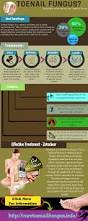 everything you need to know about toenail fungus u2013 infographic portal