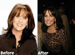 robin mcgraws hairstyle robin mcgraw plastic surgery before after plasticsurgerys net