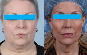 why weight loss makes your face look older