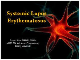 Sle Ppt Templates Lupus Erythematosus