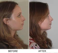 understand breathing and sinus expert sinus surgeon nyc dr