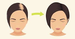 rinsing hair with coke baking soda stops hair loss promotes hair growth in no time