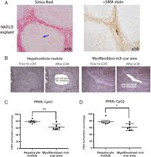 plasma dna methylation a potential biomarker for stratification