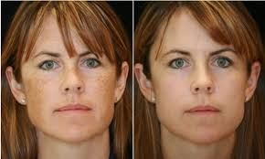 advanced dermatology review with before and after results at