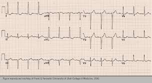 strain pattern ecg meaning hypertension lvh echo and stuff the british journal of cardiology