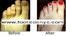 Comfortable Shoes After Foot Surgery Nyc Podiatry Center Of Excellence Cosmetic Foot Surgery By