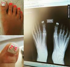 manicure under x ray funny pinterest gifs
