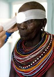 Blindness In The World 40 Best Interesting Facts Did You Know Images On Pinterest