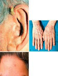 cancer of the ear cartilage skin cancer
