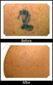 the 25 best tattoo removal cost ideas on pinterest cost of
