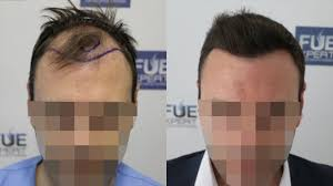 how thick is 1000 hair graft fue hair transplant 3500 grafts in nw class lv a by dr juan