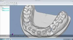 3d Medical Software Autoscan Ds 3d Dental Scanner U0026 Software Demo Shining 3d Youtube