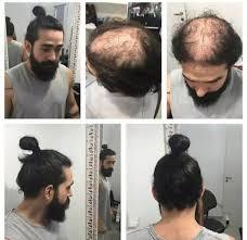 Know Your Meme 9gag - man bun hairstyle 9gag balding man man bun know your meme hair