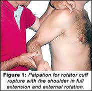Palpate Supraspinatus Tendon Palpation Test For Diagnosis Of Rotator Cuff Tears