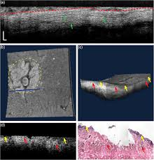 colposcopic imaging using visible light optical coherence tomography