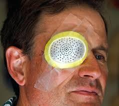 light streaks after cataract surgery post cataract surgery light streaks can you get a cataract after
