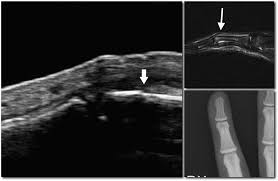 diagnostic accuracy of ultrasonography for hand bony fractures in