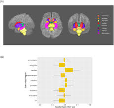 layout consultores zarate subcortical volume and white matter integrity abnormalities in major