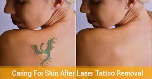5 tips on how to care for skin after laser tattoo removal