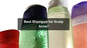 Shampoo For Itchy Scalp And Color Treated Hair What Is The Best Shampoo For Scalp Acne