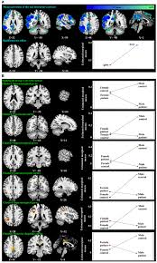 frontiers adolescent major depressive disorder neuroimaging