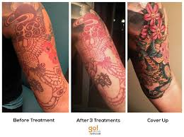 removal to cover up go removal