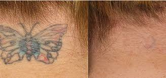 laser tattoo removal brighton picosure treatments zapp laser studio