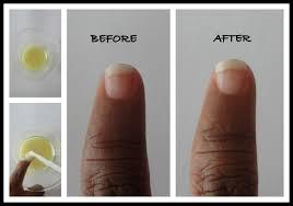 diy nail care whitener