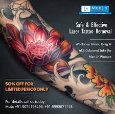 laser tattoo removal or tattoo removal cream which one is better