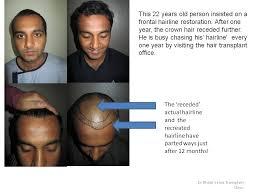 dhi hair transplant reviews dr tejinder bhatti author at darling buds hair transplant center