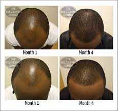 thining hair in men front treatment for thinning hair in front trendy hairstyles in the usa