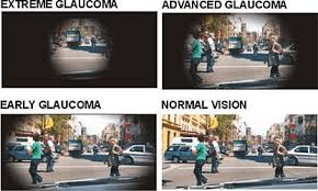 Can Lasik Cause Blindness Glaucoma Treatment Options Laser Eye Surgery Laservue