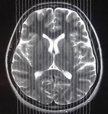Axial Mri Brain Anatomy Brain Mri Planning U0026 Reference Images R Diology De Arun