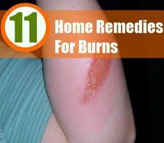 Home Remedies For Small Burns - home remedies for burns health tips pinterest home remedies
