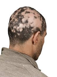 bald spot treatment for men latest men haircuts
