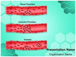 thrombosis types powerpoint template is one of the best powerpoint