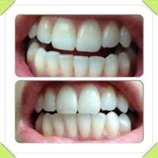 coconut oil pulling brush teeth before or after best brush 2017