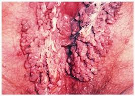 Genital herpes is a sexually transmitted infection that is caused by the  herpes simplex virus  There are two types of herpes simplex virus  HSV