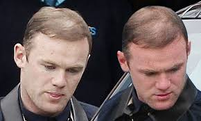 sean coronation street hair tansplant two years after spend 15k on hair transplant wayne rooney needs