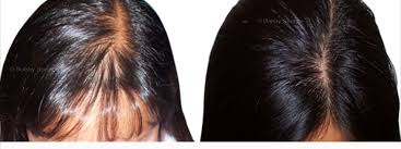 what causes hair loss in women over 50 female hair loss female hair loss products 2 minoxidil