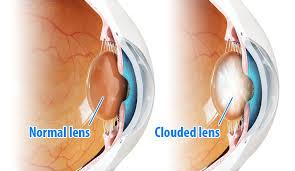 light streaks after cataract surgery cataract surgery perth ophthalmic surgeon subiaco eye hospital