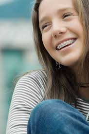 dangers of metal braces livestrong com