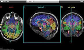 Image Of Brain Anatomy Headneckbrainspine
