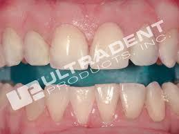 Does Laser Teeth Whitening Work In Office Power Bleach Opalescence Boost Pf 40