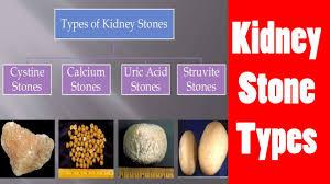 foods avoid uric acid kidney stones lemon juice to reduce uric