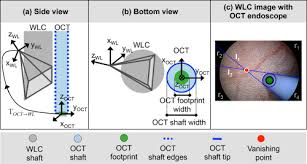 osa registration of free hand oct daughter endoscopy to 3d organ