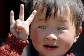 eyes sensitive to light at night nong youhui a chinese boy with localized luekodermia leucoderma in