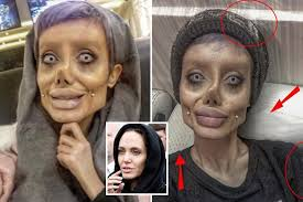 50 year old makeover zombie teen who had 50 surgeries to look like angelina jolie is