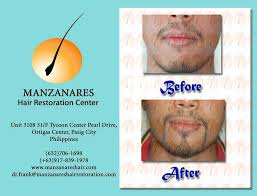 hair transplant costs in the philippines facial hair transplant other hair loss treatments hair