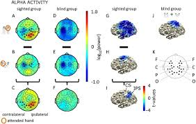 What Is Congenital Blindness Oscillatory Activity Reflects Differential Use Of Spatial